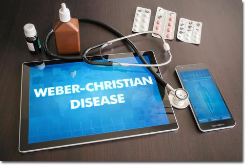ウェーバー・クリスチャン病