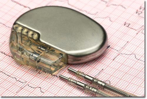 pacemaker00.jpg