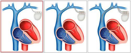 pacemaker05.jpg